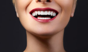 cosmetic dentistry, before and afters