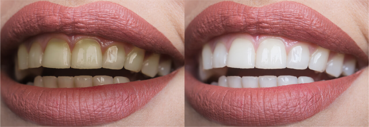 cosmetic dentistry, before and afters images