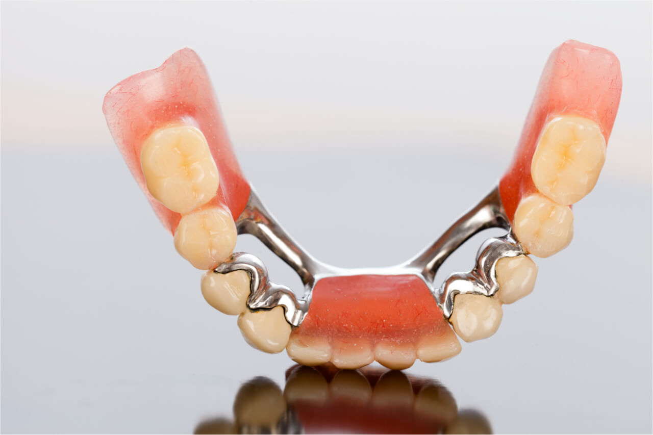 loose dental bridge symptoms