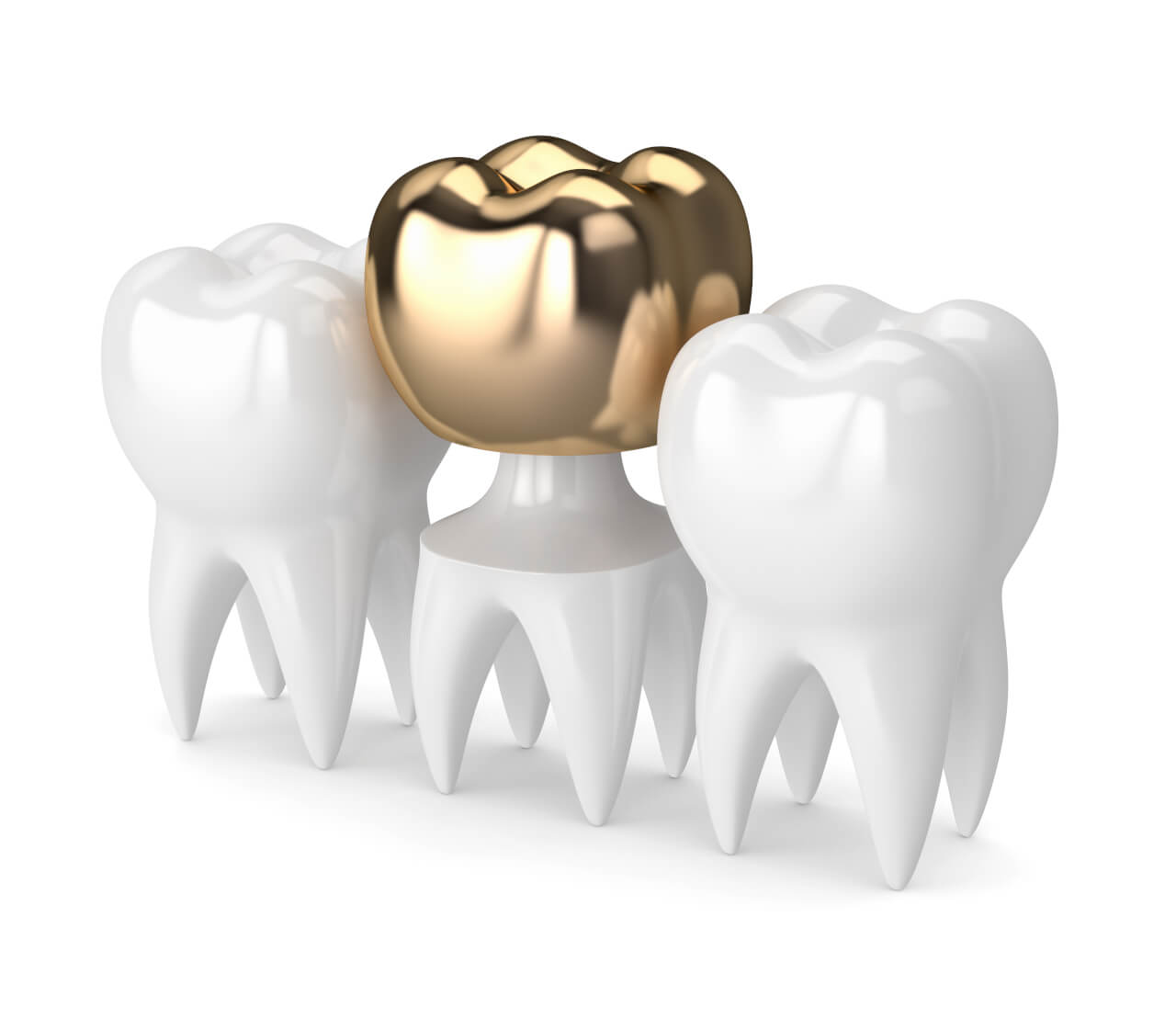 gold crown tooth