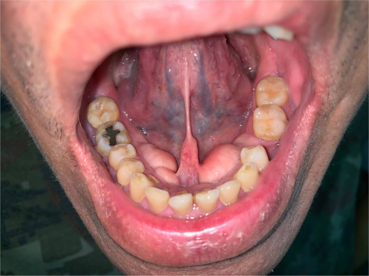 gingival hyperplasia symptoms