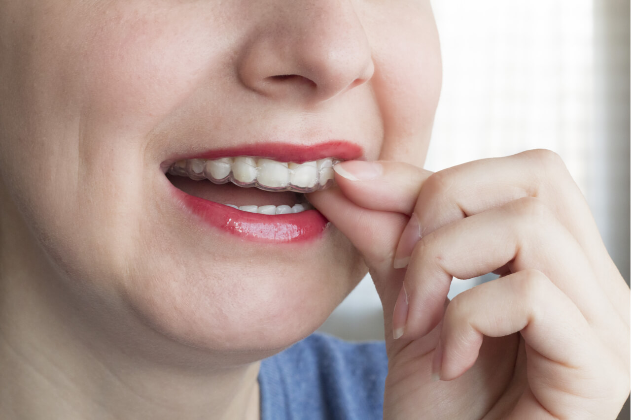 is feasible teeth whitening with invisalign?