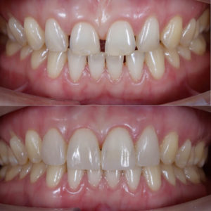 how to fix teeth gap