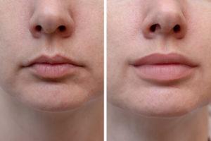 lip wrinkle fillers