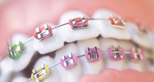 child and adult orthodontics