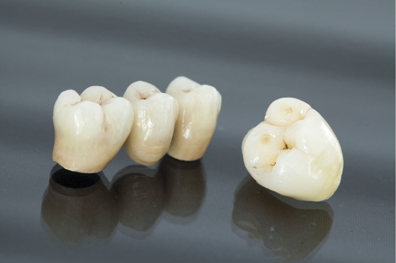 dental implants versus bridges