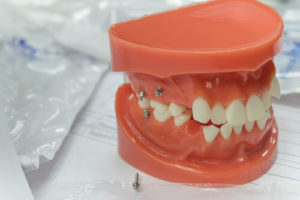 mini dental implants cost